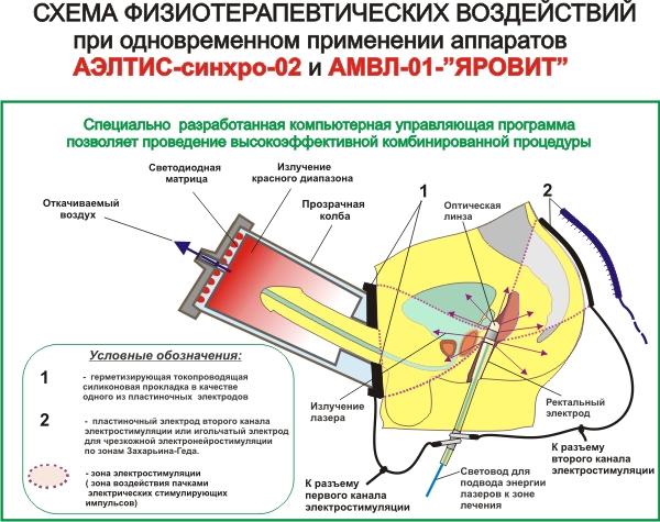 схема физиотерапевтических
