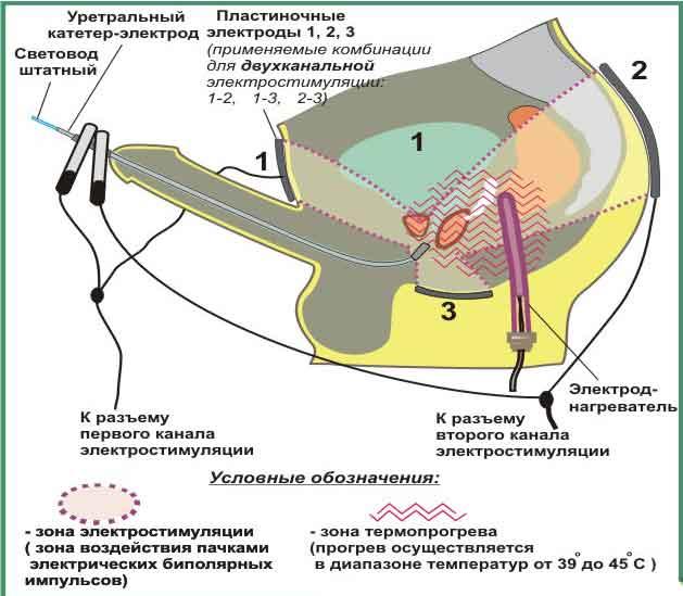 Симптоми і лікування варикозного розширення вен нижніх
